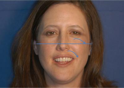 Karla-Zamora-facial